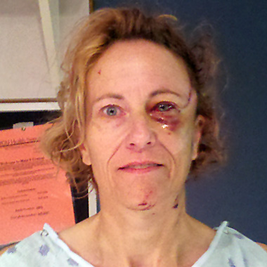 Facial injuries in small overlap crash